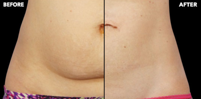 How Much Does Coolsculpting Cost In Calgary